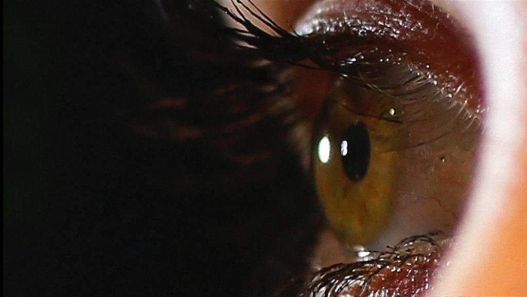美国一女子眼睛里取出14条罕见寄生虫,系全球感染首例