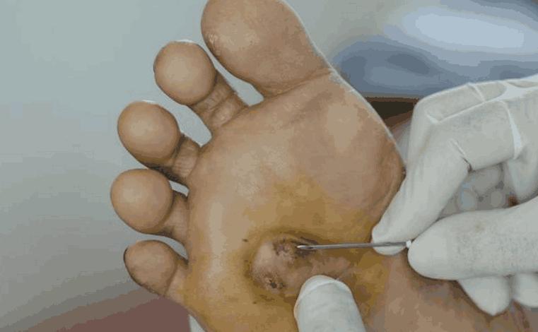 双脚有5种感觉, 暗示糖尿病足要来了, 煮1种水喝, 控糖防并发症