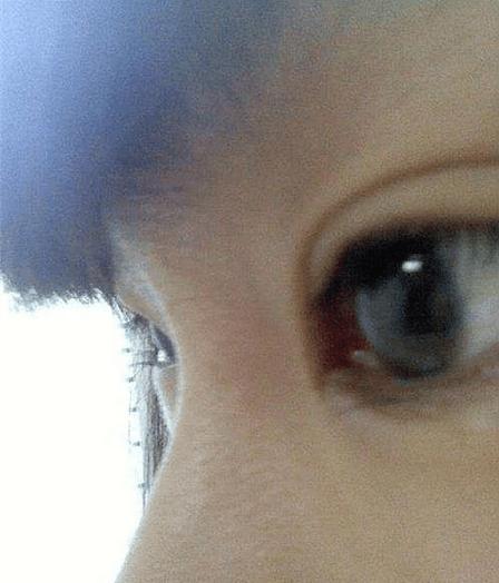 重庆: 孩子老是揉眼睛 原来是倒睫毛作怪