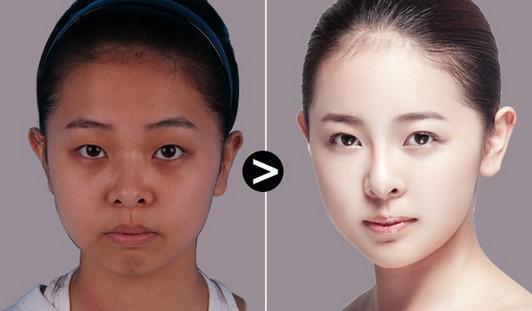 打整形瘦脸效果