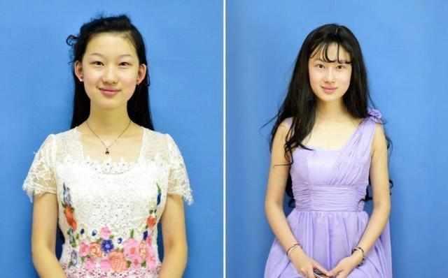 """19岁女大学生整容2次只为变成女星""""刘亦菲"""", 整容前后判若两人!"""