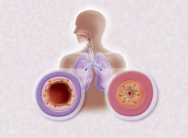 每日一说: 支气管炎有哪几种类型? 治疗药物有哪些?