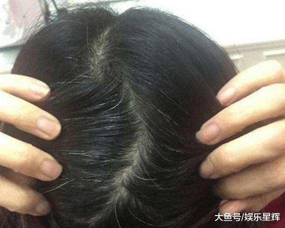 """头发变白又去染发? 洗头小哥透露, 加""""碱性物""""洗头, 渐回黑发!"""
