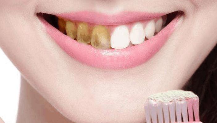 牙黄不用去洗牙,刷牙的水里加点这个东西,牙齿3天就能变白,简单好用