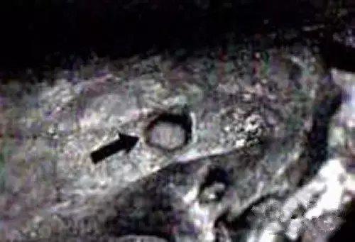 俄罗斯科学家发现, 万年前头骨出现子弹孔?