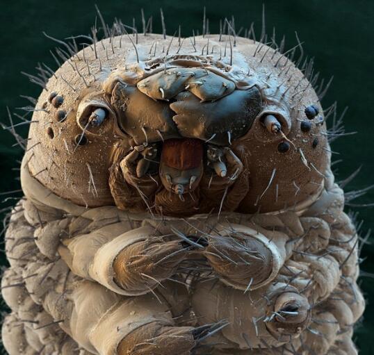 螨虫有哪些克星? 螨虫怎么祛除?