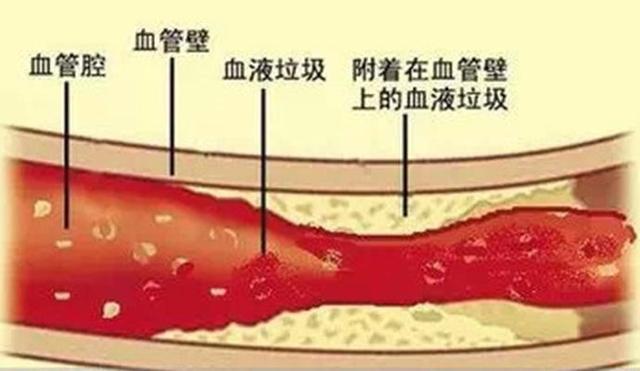 http://image.uczzd.cn/4999292307479965319.jpg
