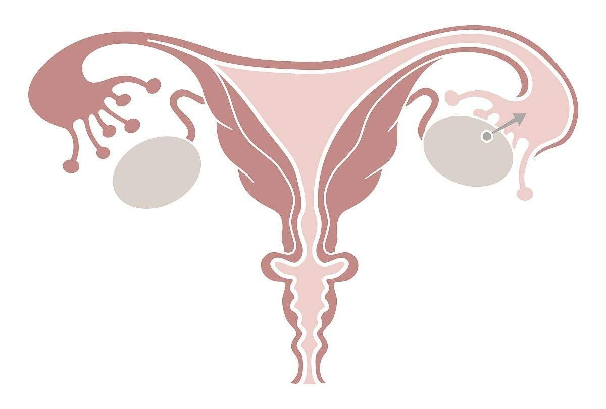 怎样诊断排卵期出血 对于月经规律,周期为28天的生育期女性来说,如果出血发生在月经期的第11-16天(围排卵期,排卵日前后的一段时间),我们往往称之为围排卵期出血。在诊断上应该注意以下几点。 1、详细询问月经周期情况,尤其要注意患者述说的月经周期的时间是否正确(女性月经周期以月经来潮第一天为周期的开始,到下次月经来潮第一天为止。) 2、详细询问月经量的多少。对于月经频发,周期缩短为主诉的患者尤其要注意月经量的情况。询问月经量是否如苹果树结果一样,有大、小年之分。一般来讲,排卵期出血量不多,比月经量少,
