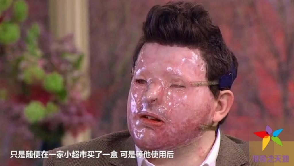 男人使用面膜去痘,结果被意外毁容,变成无脸男子!