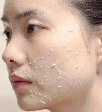 皮肤科医生的护肤秘籍, 再贵的护肤品也没必要, 保湿防晒就足够了(图7)