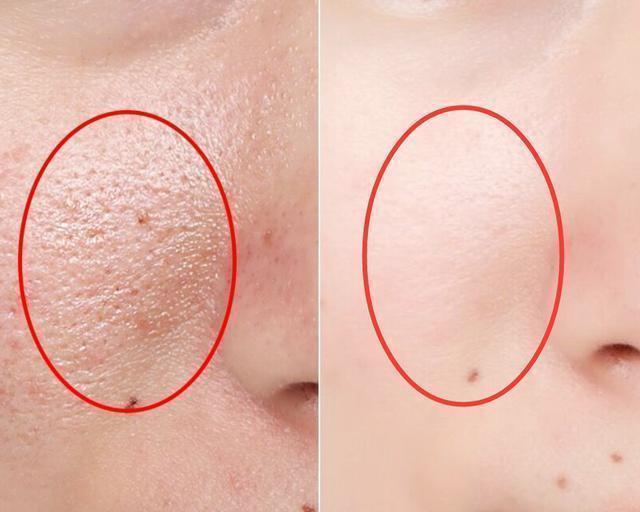 洗脸时用2个小技巧, 让你的毛孔变小, 鼻子小米粒、痘痘也少了(图5)