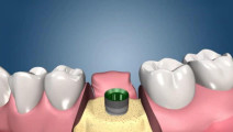 "3D模拟""种牙""过程,隔着屏幕都感到疼"