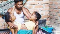 印度连体姐妹: 二女共侍一夫产下一子