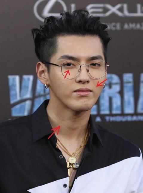 吴亦凡(前exo成员)气色蜡黄,眼窝凹陷,双眼无神.