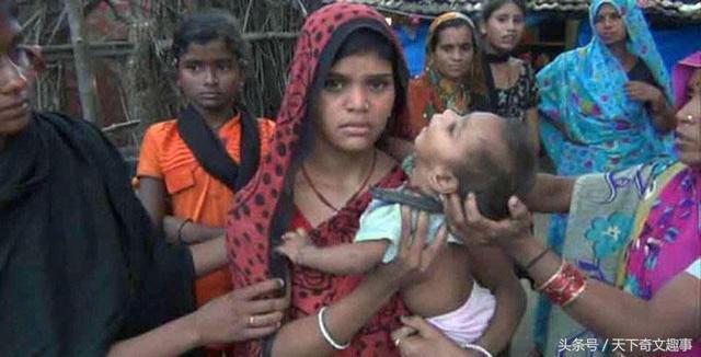 印度一婴儿哭闹不止, 原来大脑被亲生母亲插入十几根绣花针