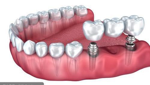 10分钟,揭秘种植牙齿全过程