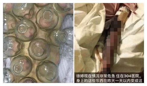 """她被譽為""""小趙雅芝"""", 曾被傢人吸血8年, 26歲患癌全身潰爛而死-圖7"""