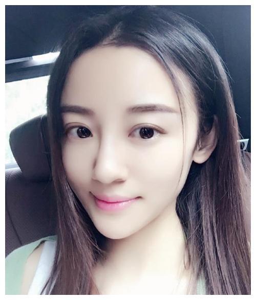 """她被譽為""""小趙雅芝"""", 曾被傢人吸血8年, 26歲患癌全身潰爛而死-圖2"""