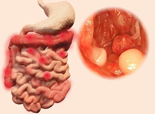 3大習慣會加速腸道癌變, 醫生: 保護腸道, 遠離腸癌, 做好2件事-圖2