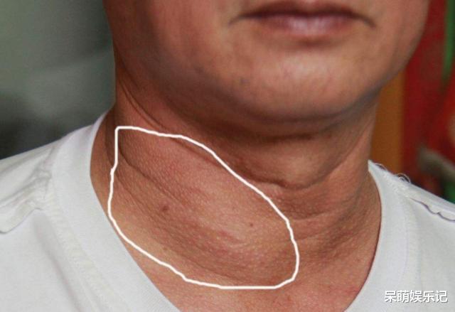 出現甲狀腺結節, 和什麼原因有關? 兩種常見食物要少碰瞭-圖1